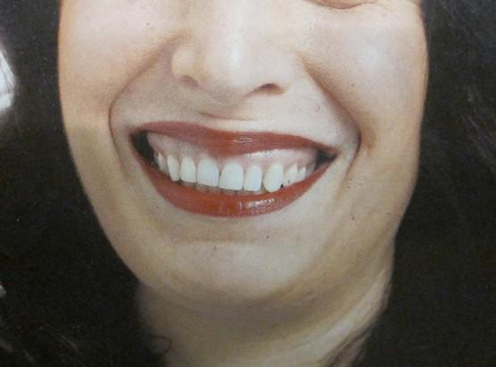 ad-smile-sm
